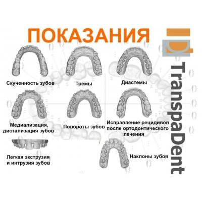 Визуализация TranspaDent