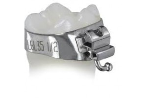 Ортодонтические кольца
